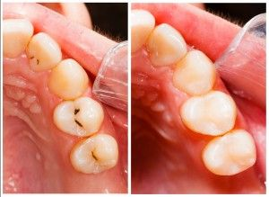 The left picture shows tooth decay on three teeth; on the left the teeth have been restored with bonded composite fillings.