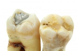 "The silver filling and the composite or ""white"" filling; both teeth have recurring cavities and new fillings would be diagnosed had the teeth not been removed."