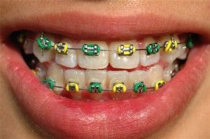 "Young patient with colorful ""bracket ties"" that can be changed with the seasons, high school colors or holidays!"