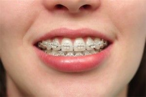 "Some patients prefer clear plastic brackets instead of metal brackets because the ""braces"" are less noticeable."