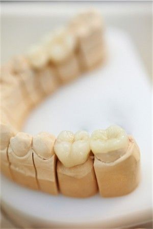 Note: the second to the last tooth is a full crown as it covers the entire tooth. The last tooth is restored with an onlay.  An onlay is a more conservative treatment as less tooth structure is removed.