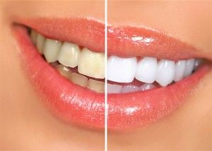 After bleaching the teeth on the right, they are several shades lighter than the teeth on the left. Tooth bleaching can demonstrate dramatic results, whitening and brightening any smile.