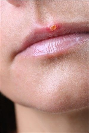 This stage of the Cold Sore appears to be crusting and is less contagious.